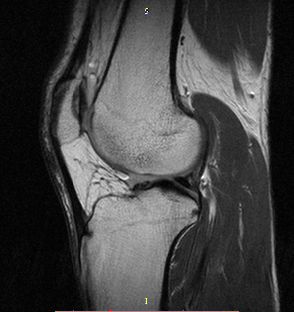 Here's my sexy knee